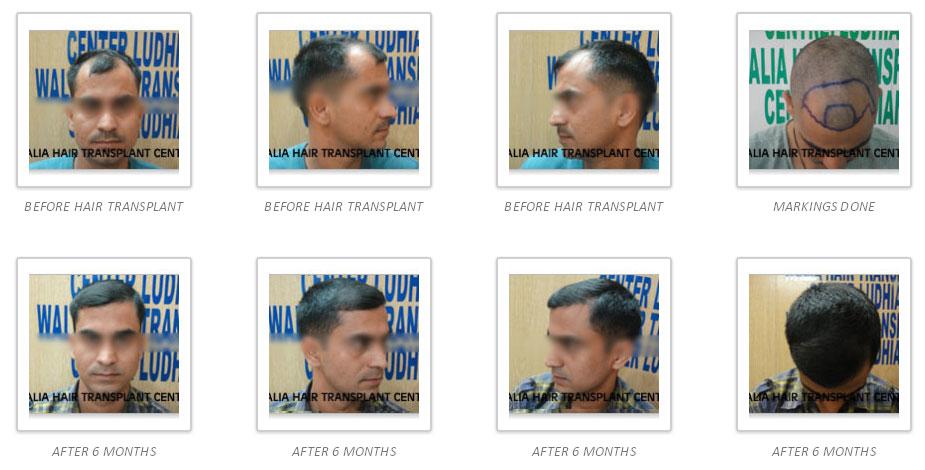 hair-gallery-img3