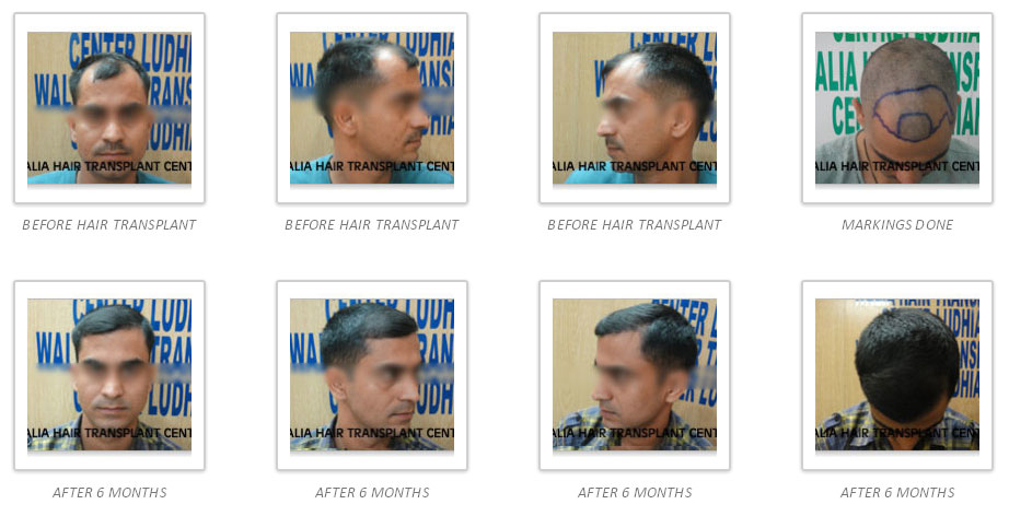 hair-gallery-img5